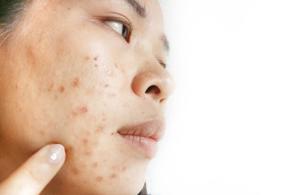 What Are the Important Facts About Infini Singapore Skin Treatment